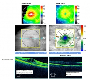 before and after treatment uveitis CMO